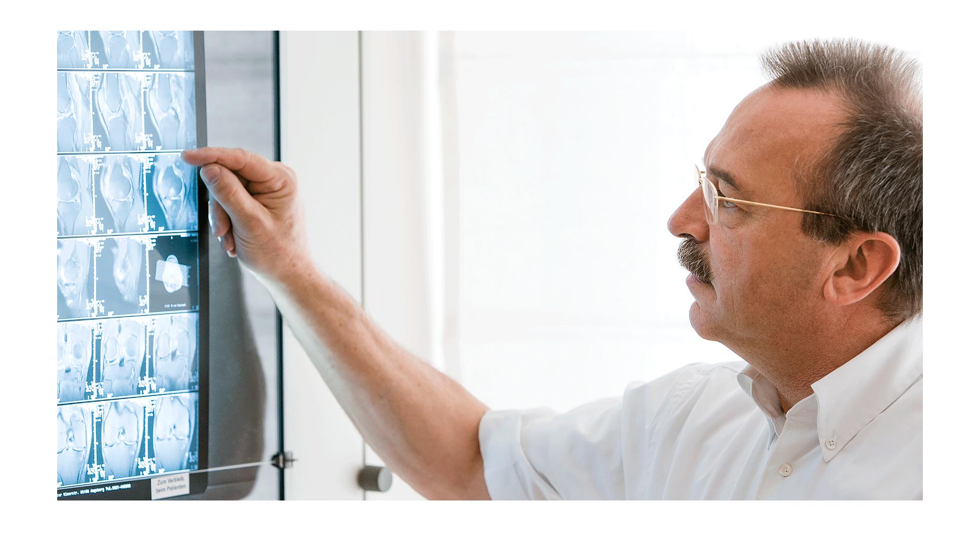 Ein Arzt - hier ein Orthopäde beurteilt MRT-Aufnahmen am Leuchtpult